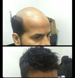 Unisex Hair Bonding With Advanced Style
