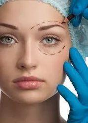 Blepharoplasty Surgery in India