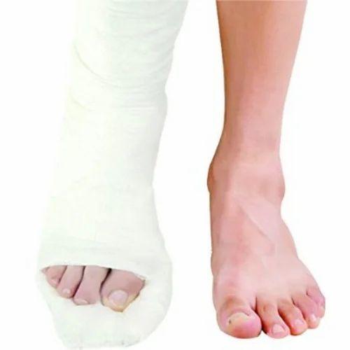 Plaster Of Paris Medical Plaster Paris 6 Inch Bandage