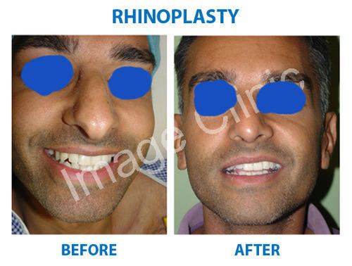 Nose Surgery In New Delhi Vasant Vihar By Image Clinic Id 11898157655