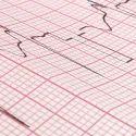 Hospital ECG Paper