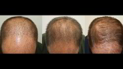 Hair Transplant Cosmetic Surgery