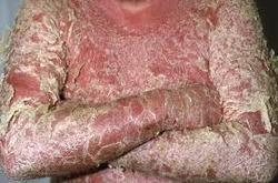 where does psoriasis occur
