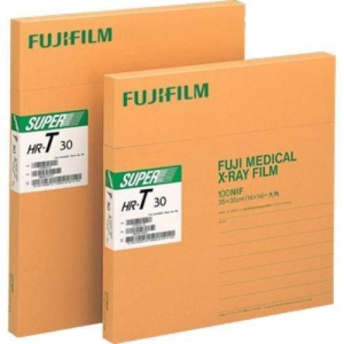 FujiFilm Medical X-Ray Films, DIHL1114, Rs 10120 / Pack | Palais Bagirus | Delhi | ID: 10798923630