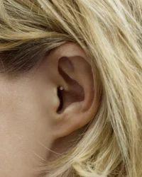 CIC Sirion 2 Hearing Aid