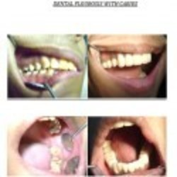 Orthdodontics(braces) Treatment