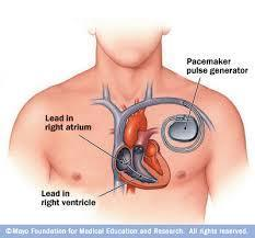 Single Chamber Pacemaker for Cardiac Surgery