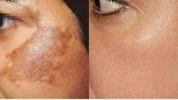 Pigmentation Patches Treatment