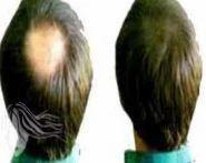 Hair Bounding