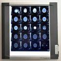 Automatic Shutdown Mechanism LED X-Ray View Box