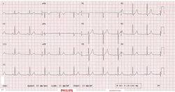 Electrocardiogram ECG Service