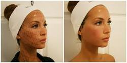 Full Face & Neck Thermage