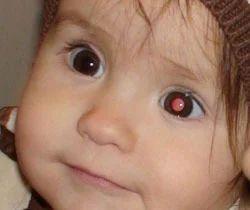 Paediatric Ophthalmology