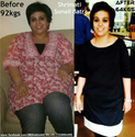 Laser Free Weight Loss