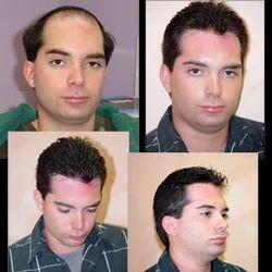 Hair Bonding Services