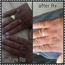 Pimple Treatment Services