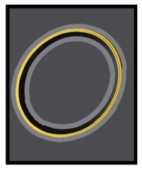 PP Fix SWR Ring