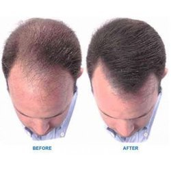 Non surgical hair replacement in india non surgical hair replacement pmusecretfo Image collections
