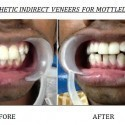 Esthetic Treatment